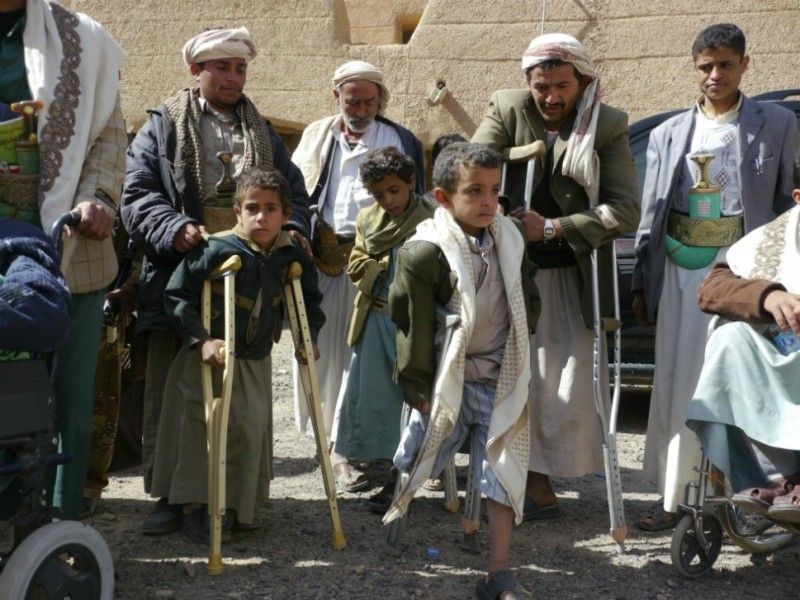 Hundreds  of children have been permanently handicapped by the years of fighting, local  doctors say. This boy (front, center) had his leg amputated after a government  airstrike left him trapped under the rubble of a collapsed wall.
