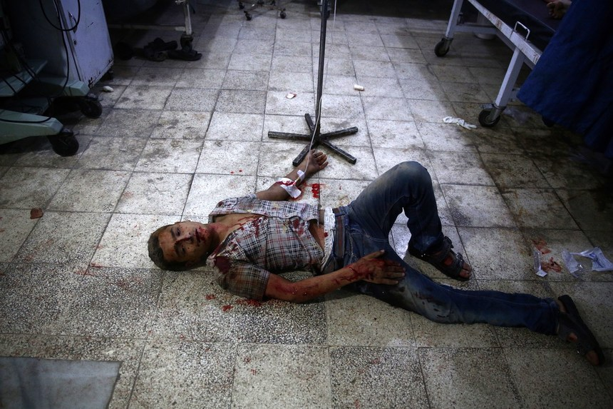 A wounded man is seen on the floor at a make shift hospital in the rebel-held area of Douma, east of the capital Damascus, following shelling and air raids by Syrian government forces on August 24, 2015. AFP PHOTO / ABD DOUMANY        (Photo credit should read ABD DOUMANY/AFP/Getty Images)