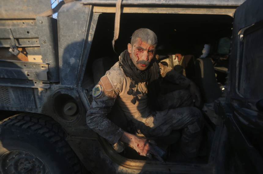 TOPSHOT - A member of Iraq's elite counter-terrorism service sits in a vehicle after being wounded in fighting the Islamic State group's jihadists in the al-Sajariyah area, east of the city of Ramadi, the capital of Iraq's Anbar province, 120 kilometers west of Baghdad, on February 3, 2016.  Iraqi forces declared victory in December in the Ramadi battle after wresting back control of the city's central government complex from the Islamic State group. / AFP / AHMAD AL-RUBAYE        (Photo credit should read AHMAD AL-RUBAYE/AFP/Getty Images)