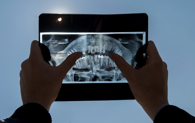 ALTERNATIVE CROP A man uses a dental X-ray to watch a partial solar eclipse in Pristina on March 20, 2015.  AFP PHOTO / ARMEND NIMANI        (Photo credit should read ARMEND NIMANI/AFP/Getty Images)