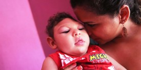 """RECIFE, BRAZIL - DECEMBER 12:  Juan Pedro, who has microcephaly and turned 1 year old on December 4, is held by his godmother Sinthia on December 12, 2016 in Recife, Brazil. As many of the babies with microcephaly, believed to be linked to the Zika virus, turn 1 year old in Recife, doctors and mothers are adapting and learning treatments to assist and calm the children. Many of the children are suffering a plethora of difficulties including vision and hearing problems with doctors now labeling the overall condition as """"congenital Zika syndrome."""" Authorities have recorded thousands of cases in Brazil in which the mosquito-borne Zika virus may have led to microcephaly in infants. Microcephaly results in an abnormally small head in newborns and is associated with various disorders. The state with the most cases is Pernambuco, whose capital is Recife, and is being called the epicenter of the outbreak.  (Photo by Mario Tama/Getty Images)"""
