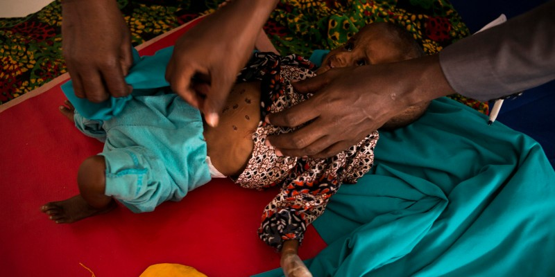 Garowe, Somalia, 2017 Habiba Azil, who is 9 month old and malnourished, is being checked by doctors inside the Garowe General Hopsital in the capital of Puntland. Puntland is a semi autonomous state in northeastern Somalia.  The United Nations warns that half of the population of Somalia, about 6,2 million people, are affected by a drought in the Horn of Africa that could become a famine. During the last famine in 2011 over 250 000 people died.