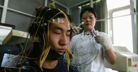 BEIJING - JULY 6:  A young Chinese internet addict receives an electroencephalogram check at the Beijing Military Region Central Hospital July 6, 2005 in Beijing, China. The clinic, the country's first government-approved facility geared toward curing Internet addicts, has treated more than 300 addicts since opening last October. A dozen nurses and 11 doctors care for the patients, mostly youths aged 14 to 24 who have lost sleep, weight and friends after countless hours in front of the computer, often playing video games with others online. Doctors use a combination of therapy sessions, medication, acupuncture and sports like swimming and basketball to ease patients back into normal lives. The patients usually stay 10 to 15 days, at $48 a day - a high price in China, where the average city dweller's weekly income is just $20. According to government figures, China has the world's second-largest online population - 94 million - after the United States.  (Photo by Cancan Chu/Getty Images)
