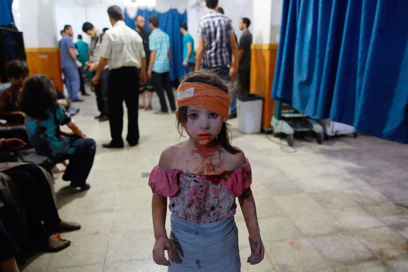 A wounded Syrian girl looks on at a make shift hospital in the rebel-held area of Douma, east of the capital Damascus, following shelling and air raids by Syrian government forces on August 22, 2015. At  least 20 civilians and wounded or trapped 200 in Douma, a monitoring group said, just six days after regime air strikes killed more than 100 people and sparked international condemnation of one of the bloodiest government attacks in Syria's war.   AFP PHOTO / ABD DOUMANY / AFP / ABD DOUMANY        (Photo credit should read ABD DOUMANY/AFP/Getty Images)