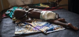TOPSHOT - A young child suffering from severe malnutrition lies on a bed in the ICU ward at the In-Patient Therapeutic Feeding Centre in the Gwangwe district of Maiduguri, the capital of Borno State, northeastern Nigeria, on September 17, 2016.  Aid agencies have long warned about the risk of food shortages in northeast Nigeria because of the conflict, which has killed at least 20,000 since 2009 and left more than 2.6 million homeless. In July, the United Nations said nearly 250,000 children under five could suffer from severe acute malnutrition this year in Borno state alone and one in five -- some 50,000 -- could die. But despite the huge numbers involved, the situation has received little attention compared with other humanitarian crises around the world -- even within Nigeria. / AFP / STEFAN HEUNIS        (Photo credit should read STEFAN HEUNIS/AFP/Getty Images)
