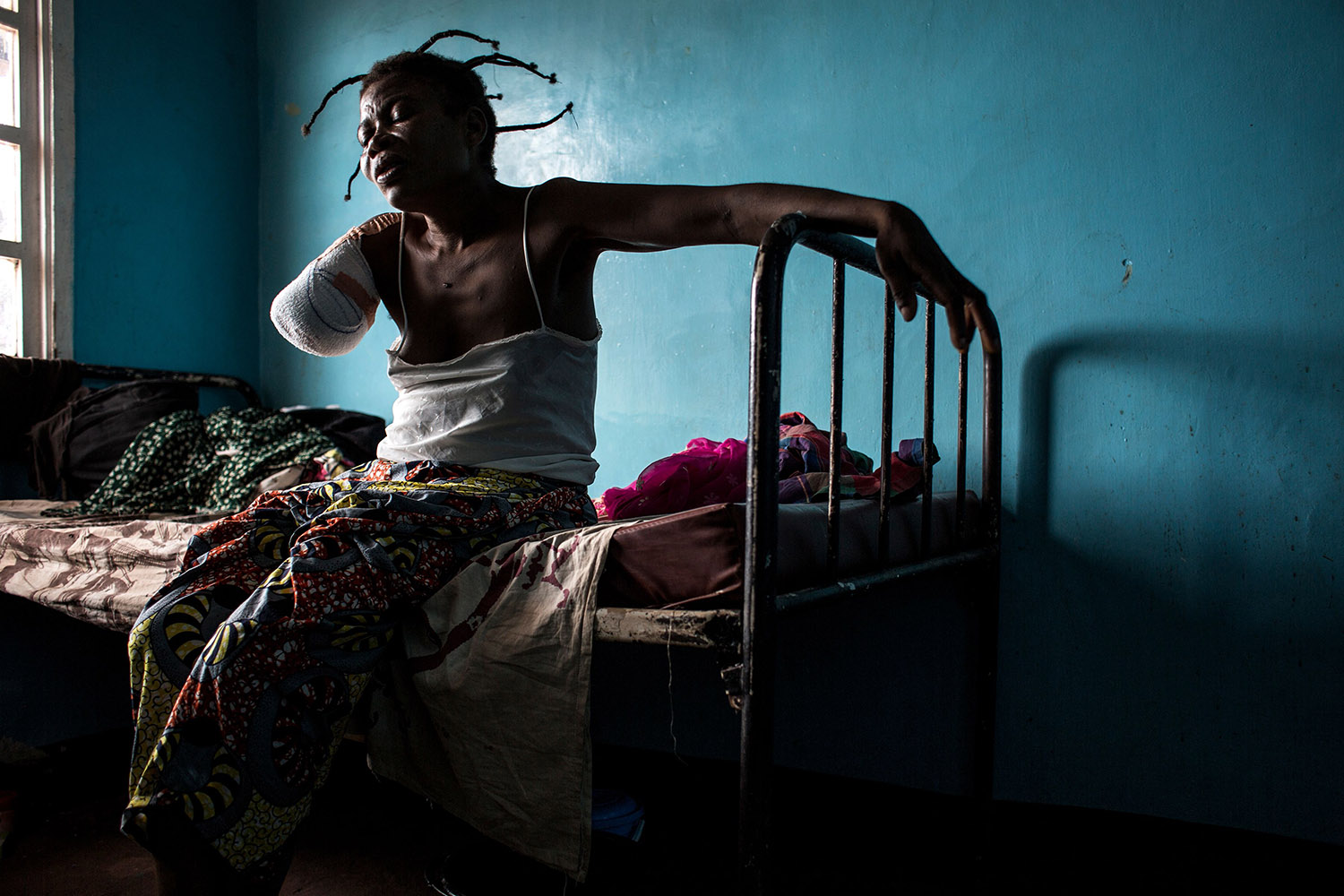 A Congolese woman, who had her arm amputated after a gun shot wound, sits on her bed on Oct. 23, in Tshikapa, a city in the Democratic Republic of the Congo's Kasai district (John Wessels/AFP/Getty Images)
