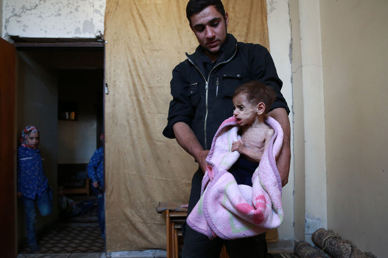 "TOPSHOT - A picture taken on October 25, 2017, shows Hala, a two-year-old girl suffering from the lack of medical care and adequate nourishment, at her home in the rebel-held town of Saqba, in Eastern Ghouta.  Aid agencies warn the situation is worsening, despite an international agreement to implement a ""de-escalation zone"" in the area, which has decreased violence but led to no new access for food, medicine and humanitarian aid. / AFP PHOTO / ABDULMONAM EASSA        (Photo credit should read ABDULMONAM EASSA/AFP/Getty Images)"