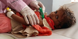 A doctor treats a Yemeni child infected with cholera at a makeshift hospital operated by Doctors Without Borders in Yemen's Hajjah province on July 16. (Stringer/AFP/Getty Images)