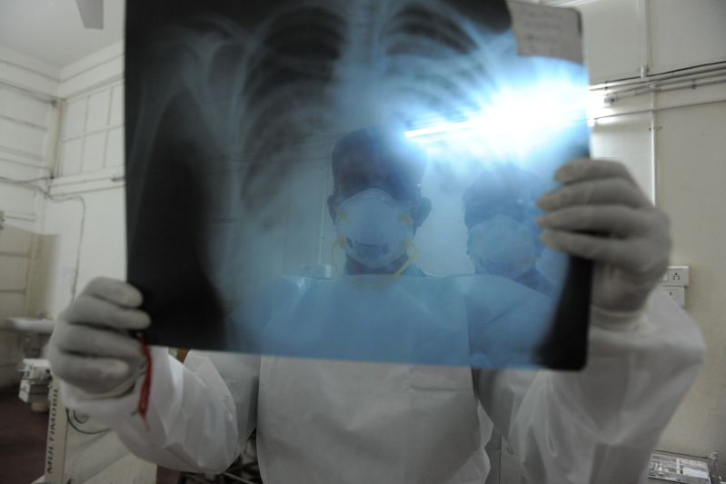 Indian doctors inspect an x-ray photograph at the  Ahmedabad Civil Hospital on March 12, 2013. (Sam Panthaky/AFP/Getty Images)