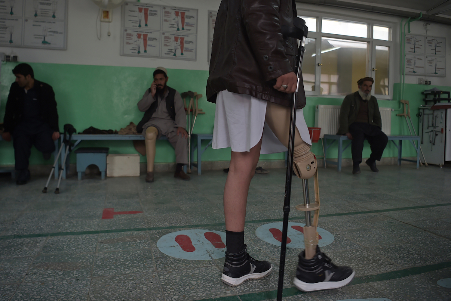 TOPSHOT - In this photograph taken on February 13, 2018 shows an Afghan amputee walking with his prosthetic leg at a hospital run by the International Committee of the Red Cross (ICRC) for war victims and the disabled in Kabul. More civilians were killed in suicide bombings and complex attacks in Afghanistan in 2017 than any previous year of the conflict, a UN report said on February 15, as militants ramp up assaults on cities. / AFP PHOTO / SHAH MARAI        (Photo credit should read SHAH MARAI/AFP/Getty Images)