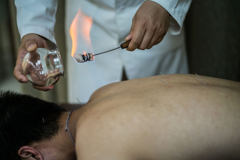 A patient receives cupping treatment by a doctor at a Chinese medicine clinic in Hong Kong.