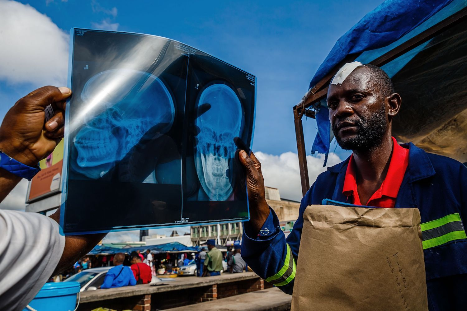 Justice Chiutsi holds an x-ray showing his head injuries outside Harare Central Police Station in Harare on February 23, 2018. Chiutsi, a cellphone vendor was shot by a policeman during clashes between commuters and police blocking commuter buses from enter ng the central business district of Harare. / AFP PHOTO / Jekesai NJIKIZANA        (Photo credit should read JEKESAI NJIKIZANA/AFP/Getty Images)