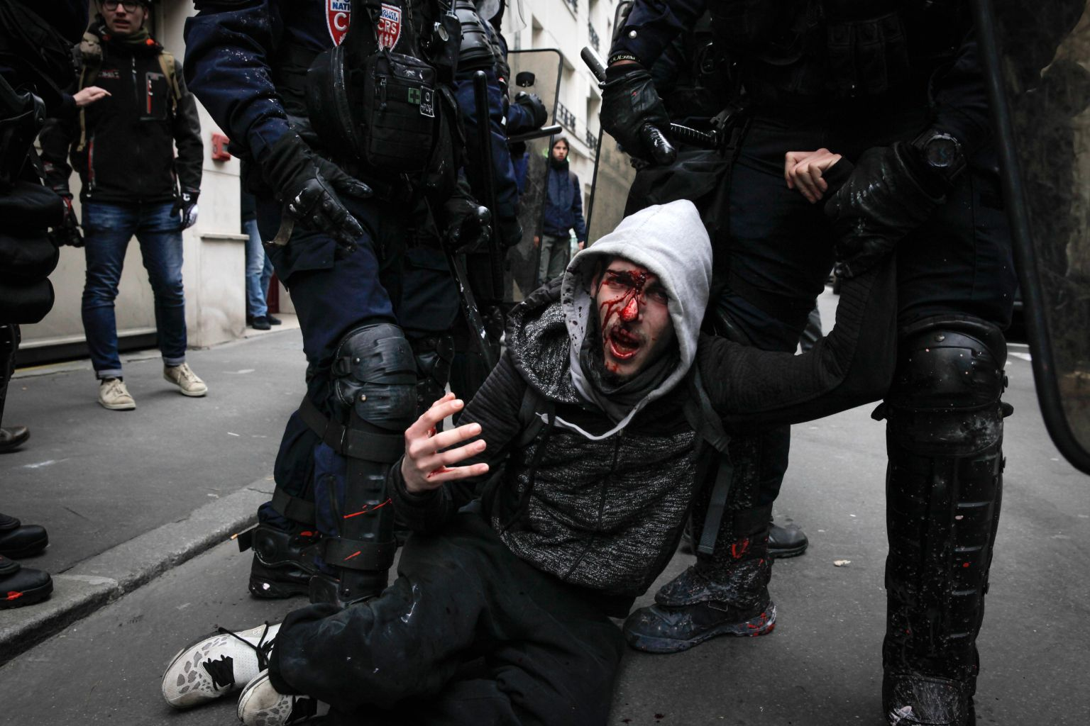 TOPSHOT - Policemen arrest an injured man on the sidelines of a protest against French government's string of reforms, on March 22, 2018 in Paris. Seven trade unions have called on public sector workers to strike on March 22, including school and hospital staff, civil servants and air traffic controllers. More than 140 protests are planned across France, the biggest culminating at the Bastille monument in Paris where unions expect 25,000 demonstrators.  / AFP PHOTO / -        (Photo credit should read -/AFP/Getty Images)