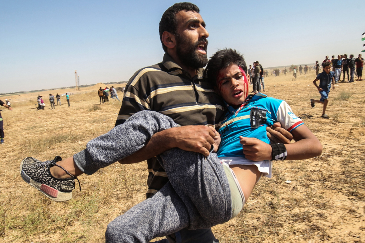 "An injured Palestinian boy is carried away from the border fence during clashes with Israeli forces following a protest marking the 71st anniversary of Nakba east of Khan Yunis in the southern Gaza Strip on May 15. Palestinians are marking the 1948 Nakba, or ""catastrophe,"" which left hundreds of thousands of Palestinians displaced by the war accompanying the birth of the Jewish state. SAID KHATIB/AFP/Getty Images"