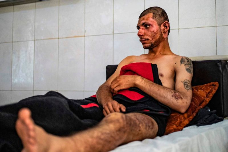 Irdal Walid, a 19-year-old Syrian Democratic Forces fighter, who was wounded in Turkish airstrikes on Ras al-Ain, receives treatment in the northern Syrian town of Hasakah on Oct. 21.