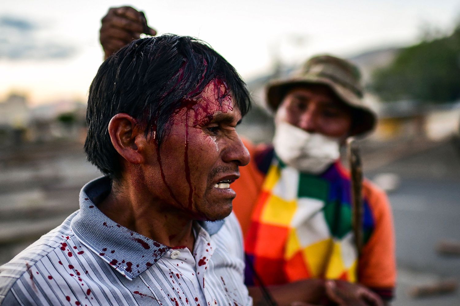 A supporter of Morales gestures after being injured during clashes with riot police near Cochabamba on Nov. 18. RONALDO SCHEMIDT/AFP via Getty Images