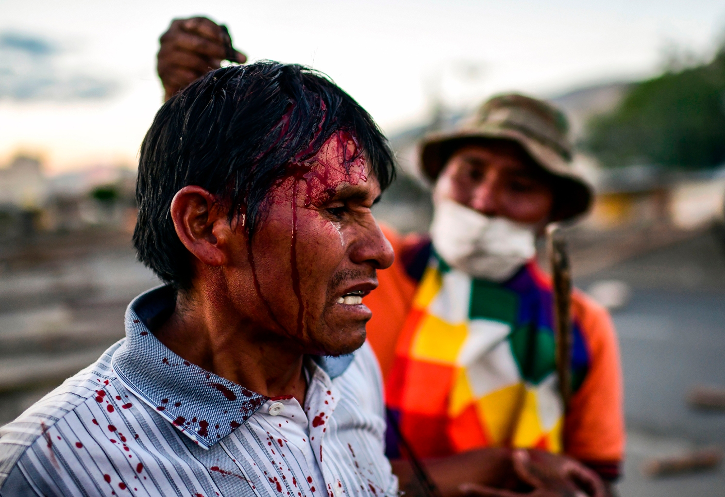 BOLIVIA | A supporter of Morales gestures after being injured during clashes with riot police near Cochabamba on Nov. 18. RONALDO SCHEMIDT/AFP via Getty Images