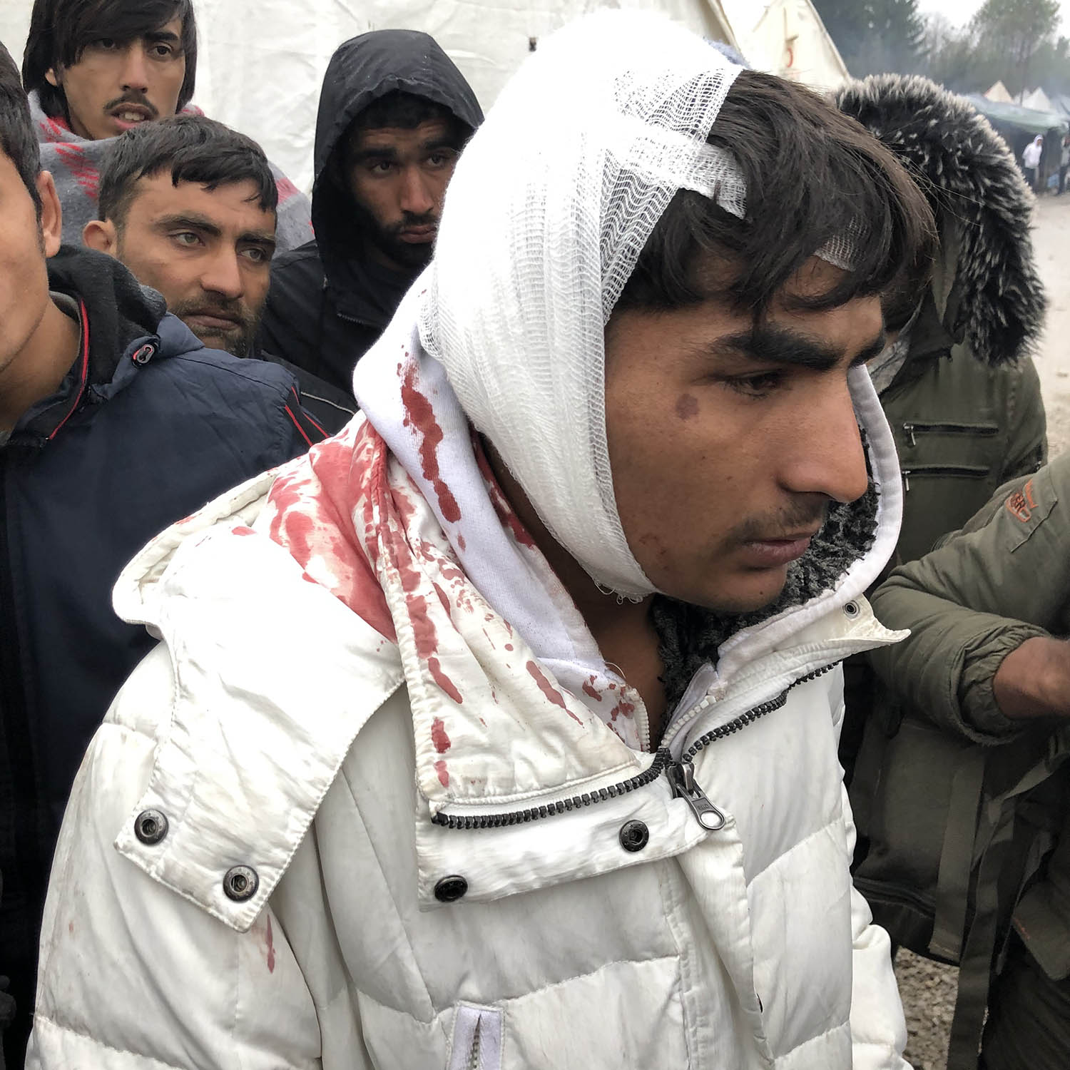 A migrant arrives at the Vucjak camp in Bosnia and Herzegovina with blood on his jacket on Oct. 31. Many migrants say they have been beaten by Croatian police while attempting to cross the Croatian-Bosnian border.