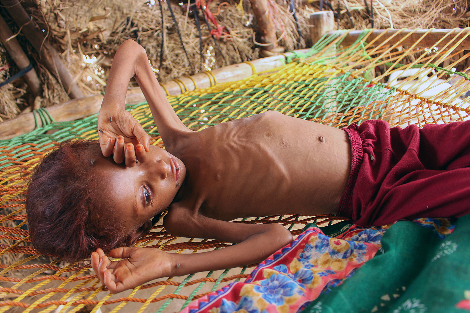 A 7-year-old girl suffering from malnutrition lies on a bed at a makeshift camp for displaced Yemenis in the northwestern Hajjah province Sept. 28.