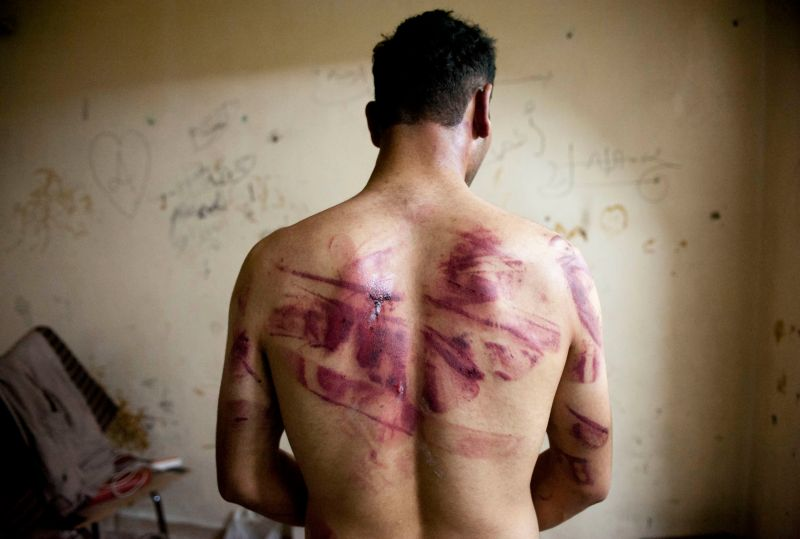A Syrian man shows marks of torture on his back, after he was released from regime forces, in the Bustan Pasha neighbourhood of Syria's northern city of Aleppo on Aug. 23, 2012.
