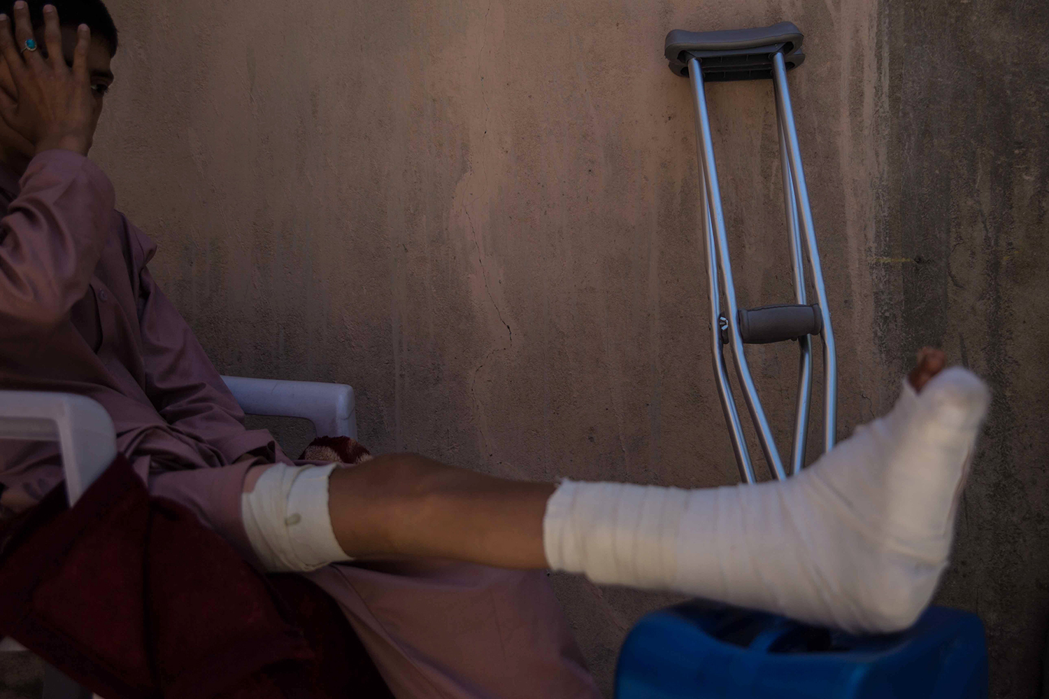 Naveed Mohammed sits at his grandparents's home in Kabul on March 26 where he is recovering from a broken leg after his house in Maidan Wardak province was hit by a rocket.
