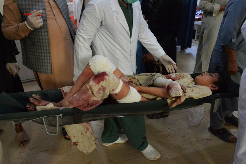An injured boy is carried on a stretcher in a hospital following a suicide attack at a funeral of a local police commander in Nangarhar, Afghanistan, on May 12.