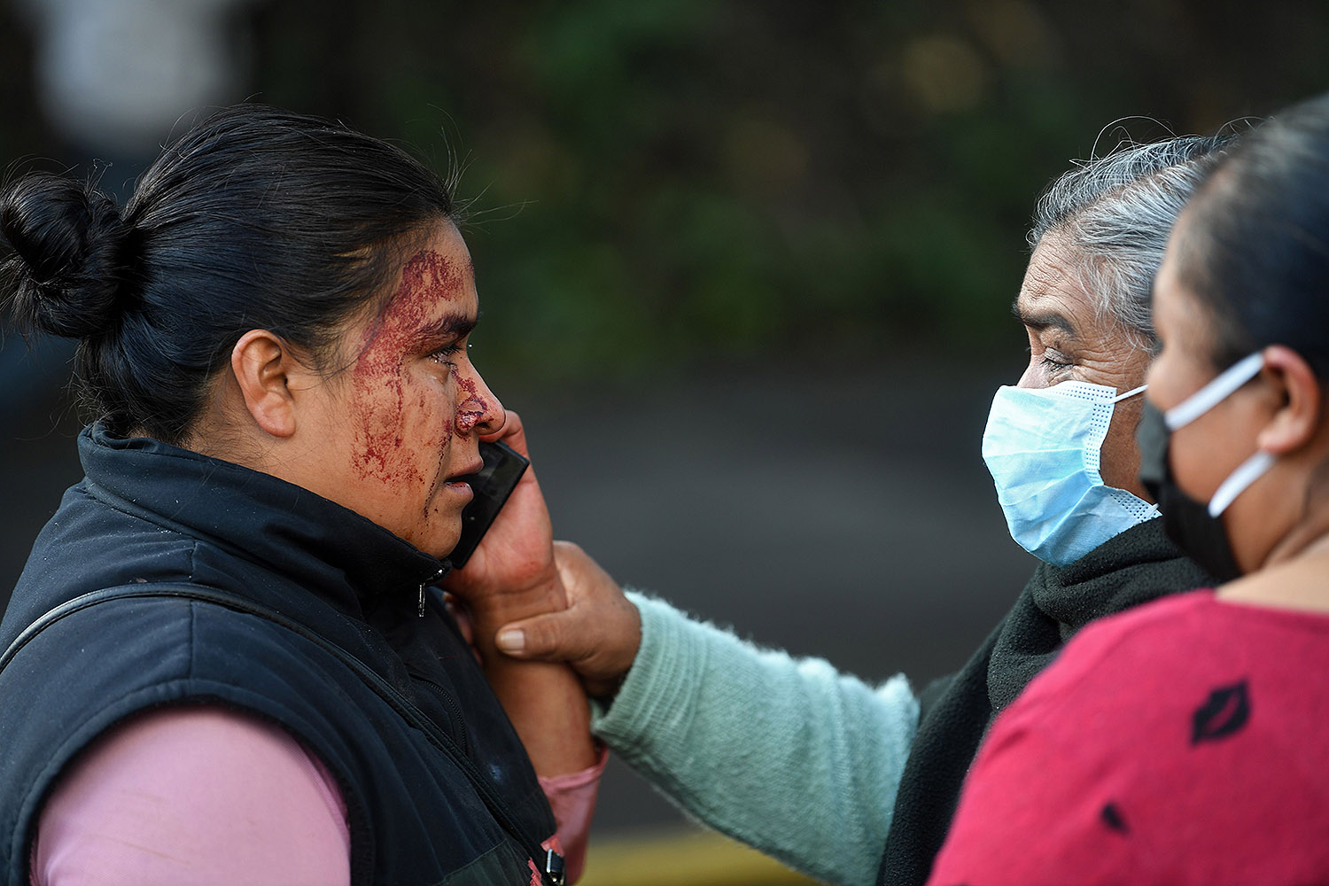A relative of a passerby who was killed in an attack speaks on the phone at the crime scene in Mexico City on June 26. Mexico City's Public Security Secretary Omar García Harfuch, who was targeted, was wounded in the attack. PEDRO PARDO/AFP via Getty Images