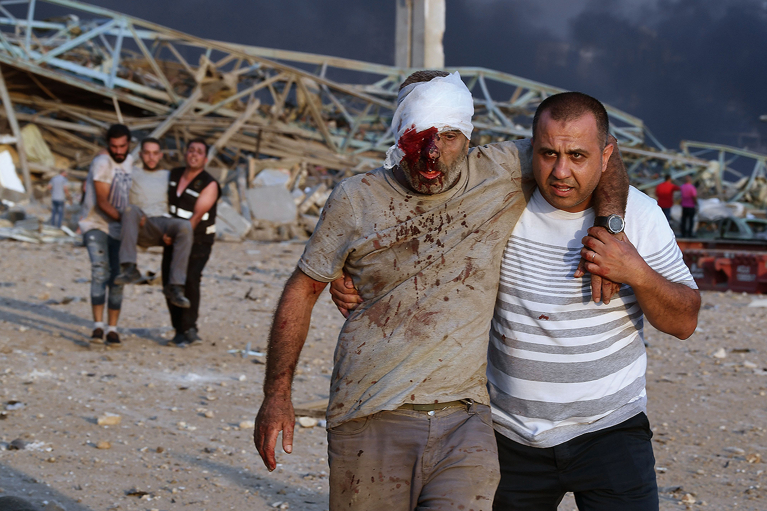 Wounded men are evacuated following an explosion at the Beirut port on Aug. 4. AFP via Getty Images