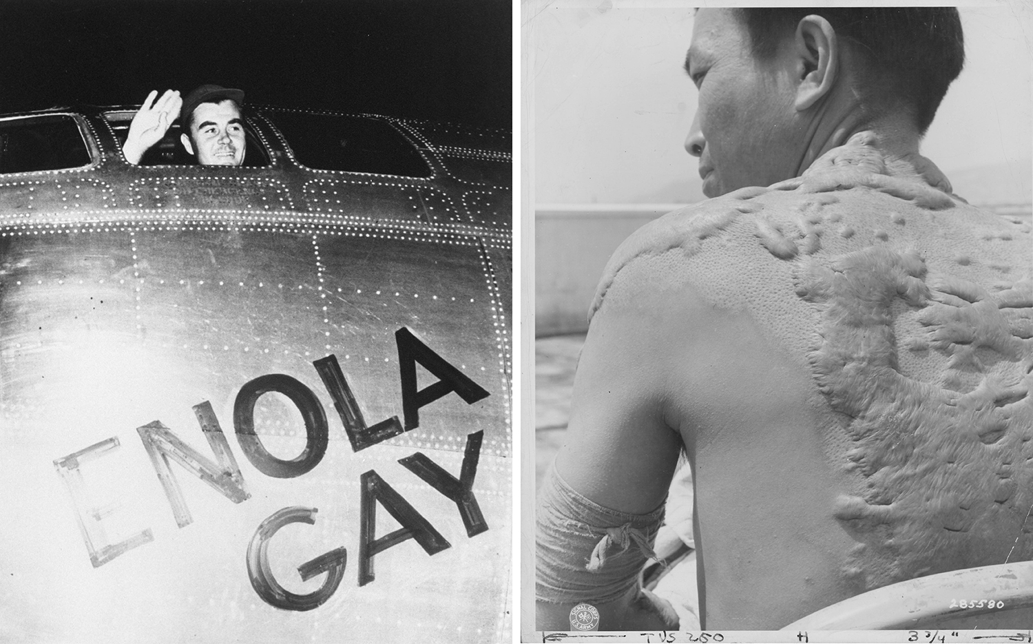 Left: U.S. Air Force Col. Paul W. Tibbets, Jr., pilot of the Enola Gay, the plane that dropped the atomic bomb on Hiroshima, waves August 6, 1945, from his cockpit before takeoff. Right: In 1947, a Japanese casualty shows the keloid scars he received from flash burns during the attack on Hiroshima. National
