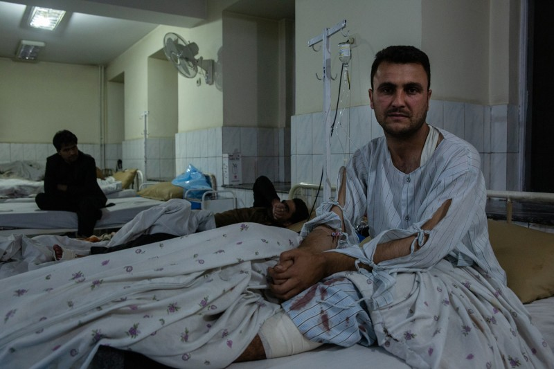 Abdul Akbari, who was shot in his left leg during the Kabul University attack, recovers at Ali Abed hospital in Kabul on Nov. 2.