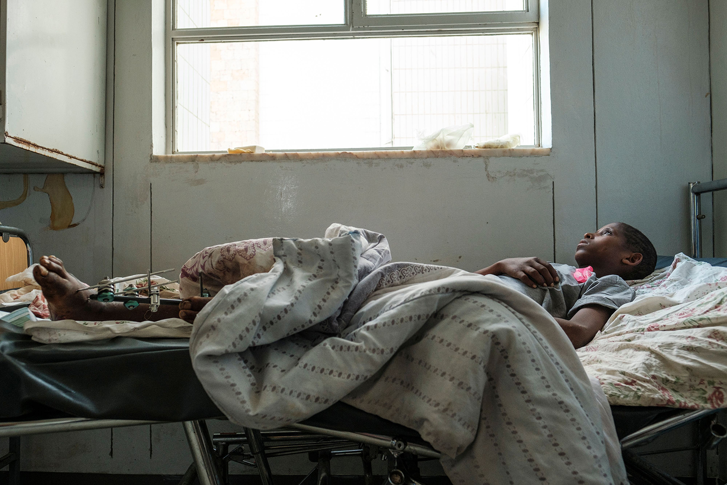 Desalegn Gebreselassie, 15, lies in a bed at Ayder Referral Hospital in the Tigray capital Mekele in northern Ethiopia on Feb. 25 after being injured during fighting between the Tigray People's Liberation Front and the Ethiopian government. EDUARDO SOTERAS/AFP via Getty Images