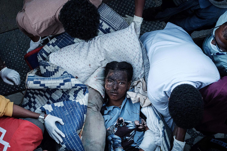 Injured resident of Togoga, Ethiopia, after an airstrike